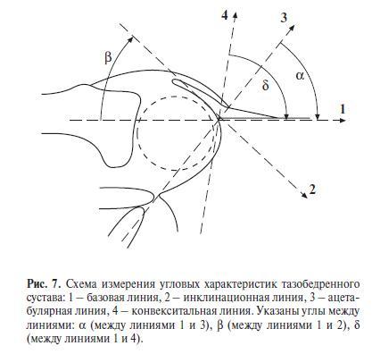Дисплазия тазобедренного сустава в градусах эндопротез тазобедренного сустава zimmer характеристики